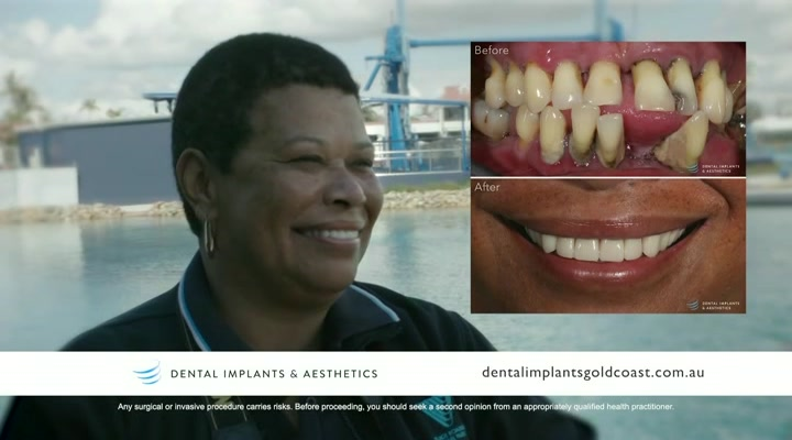 Dental Implants & Aesthetics